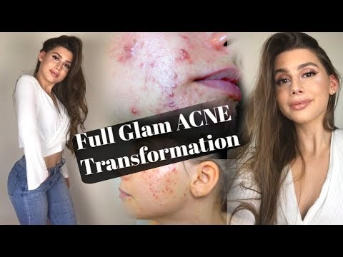 MY ACNE COVERAGE FULL GLAM NIGHT OUT MAKEUP TRANSFORMATION & HAIR ROUTINE Ft Duvolle Hair Products!