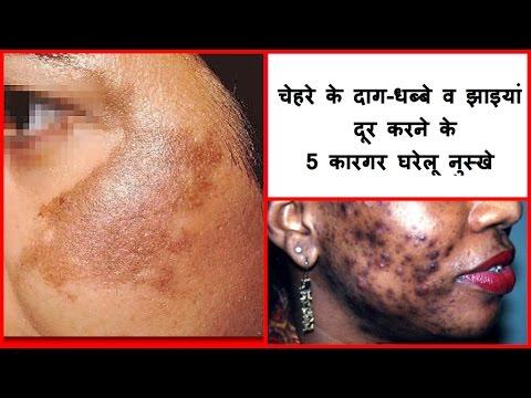चेहरे की झाइयों का घरेलु इलाज ! कैसे चेहरे पर काले धब्बे  हटाए ! चेहरे की झाइयों का उपचार