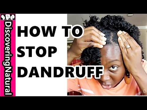 HOW TO GET RID OF DANDRUFF FAST   Dandruff Treatments For Natural Hair