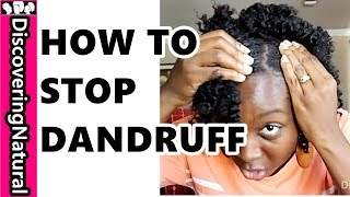 HOW TO GET RID OF DANDRUFF FAST | Dandruff Treatments for Natural Hair