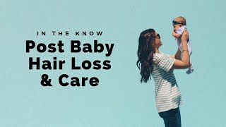 Post baby hair loss tips by Jason Collier