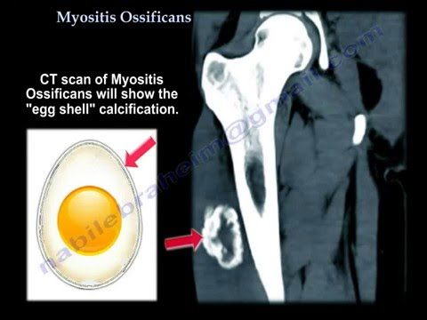 fibrodysplasia ossificans progressiva fop an overview Fibrodysplasia ossificans progressive (fop) is a rare condition that causes soft tissue, such as muscle and ligaments, to turn into bone learn more about what causes it, what it leads to, and how .