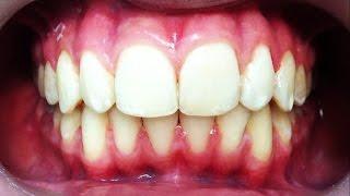 видео Чому дитина скрипить зубами