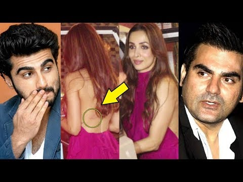 Malaika Arora Khan Caught With Arjun Kapoor's LOVE BITES On Her Back