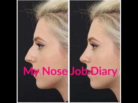 My Nose Job Video Diary | VLOG | Part One | Rachel Gagie