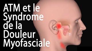 L'ATM et le Syndrome de la Douleur Myofasciale, Animation.