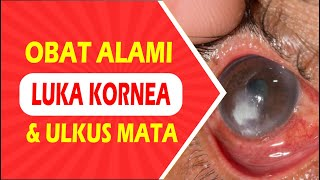 Bahaya Lensa Mata || Ulkus Kornea.