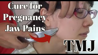 Jaw Cure (TMJ) for Jaw Pain in Pregnant Woman