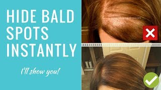 Scalp Concealer for Bald Spots & Thinning Hair (Bumble & Bumble  Demo)
