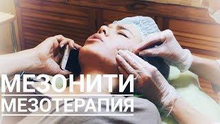 Мезонити и мезотерапия волосистой части головы. Встреча с Оксаной после 3-х летнего перерыва