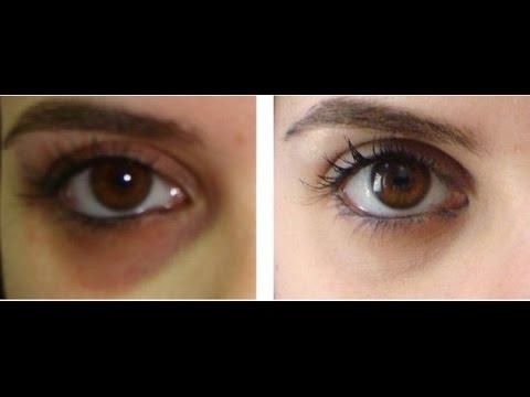 Instant Skin Whitening Face Mask,Potato for dark circles under eyes