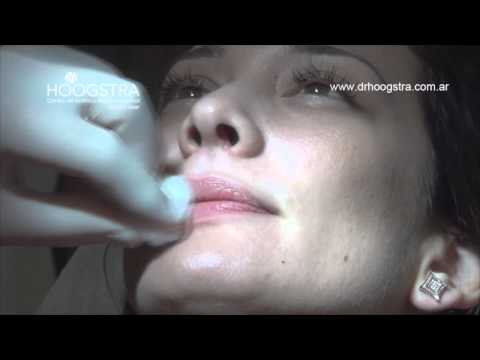 Hidratación labial y volumen con Ácido Hialurónico (14056)