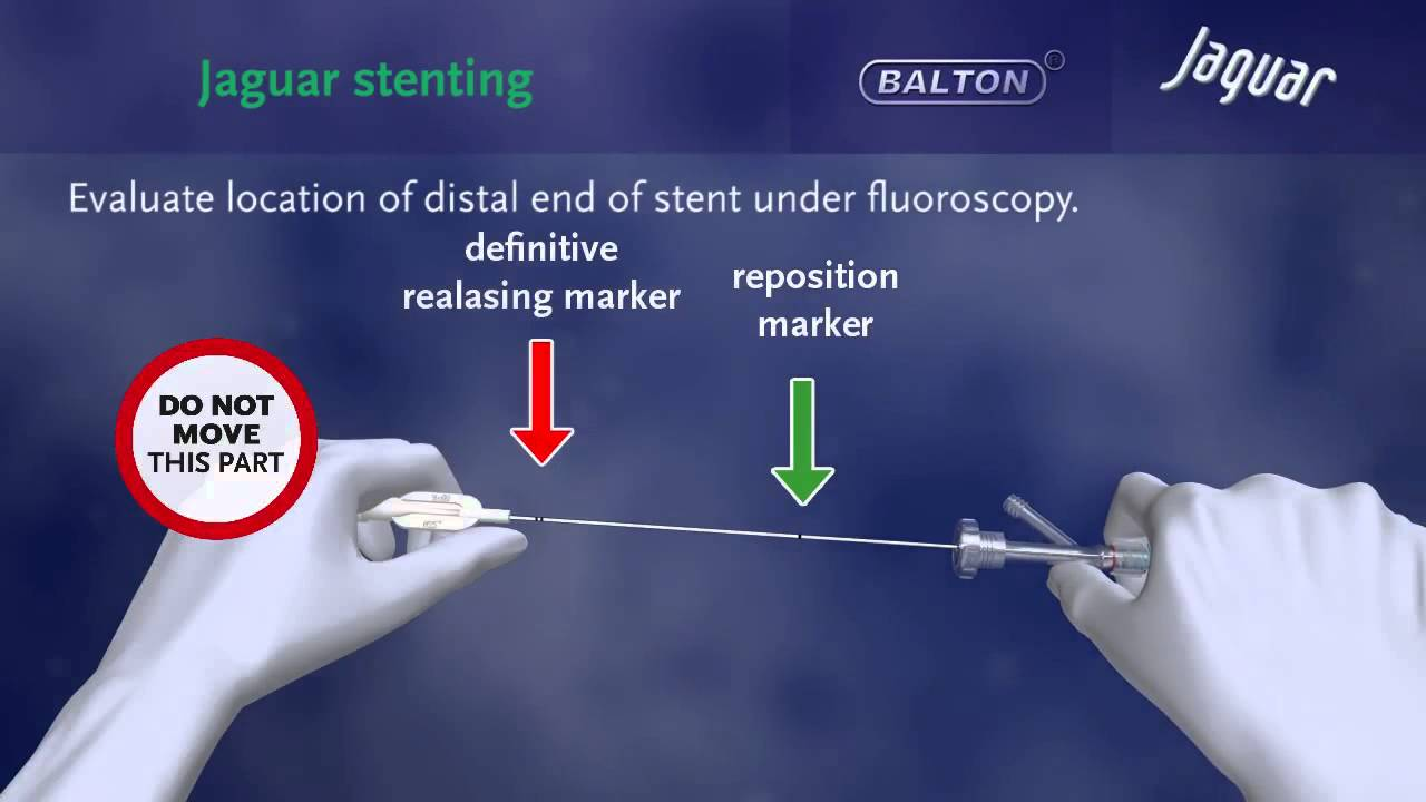 """SELF-EXPANDING NITINOL STENT """"JAGUAR"""" with delivery system ..."""