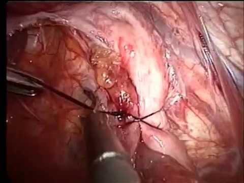 hernia de hiato cuando operar