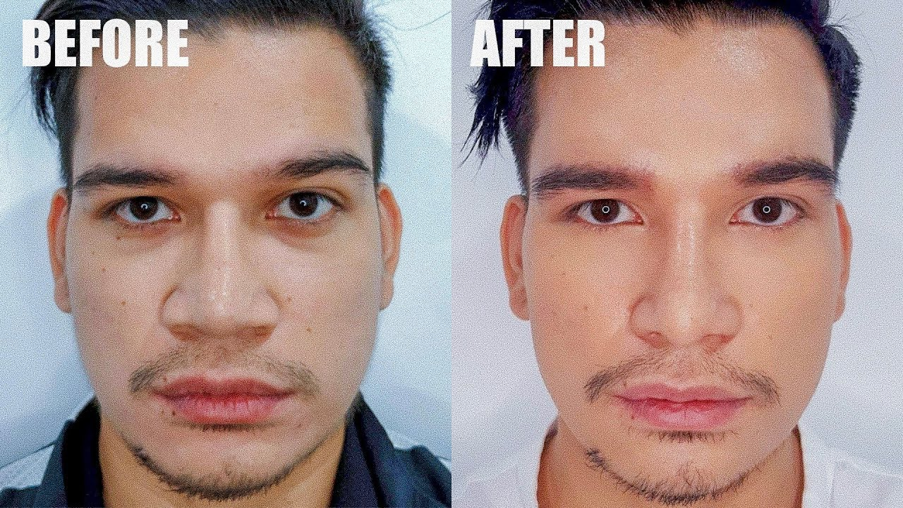 My Nose Job/Rhinoplasty Surgery Before and After Procedure