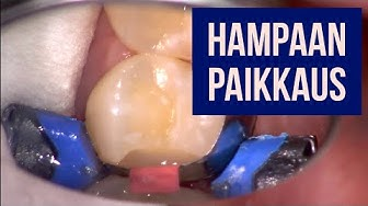 Hampaan paikkaaminen tai hampaan paikkaus (karies) - hammaslääkäri kertoo