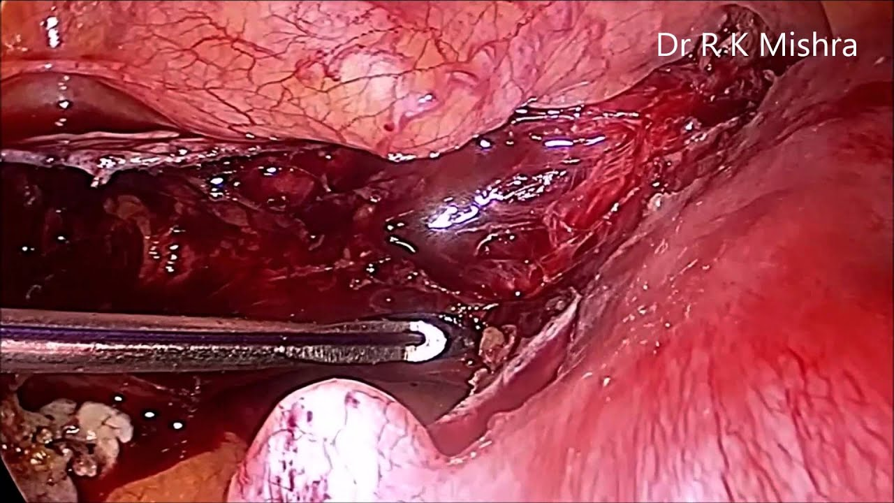 Total Laparoscopic Hysterectomy Tlh In Full Hd Youtube