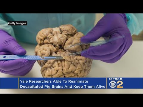 Morgen - Scientists Bring Severed Brain Back To Life