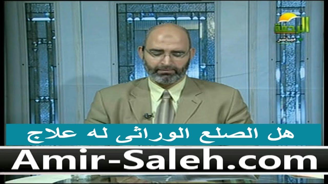 نصائح لعلاج الصلع الوراثى | الدكتور أمير صالح