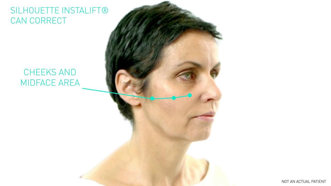 Silhouette InstaLift   Dr  José Raul Montes   Minimally