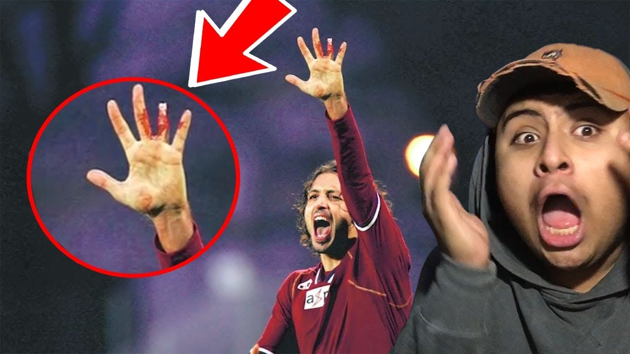 Download TOP 10 WORST SPORT INJURIES CAUGHT ON CAMERA (REACTION)