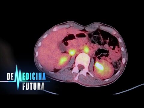 Ядерная медицина. Лечение радиацией | Медицина будущего