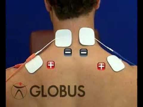 colocacion electrodos tens hombro