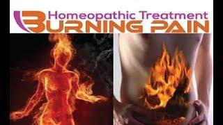 Burning Pain | Homeopathic Medicine for Burning Pain | Burn Treatment