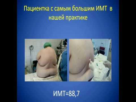 """Эпштейн С.Л. """"Периоперационная эпидуральная анестезия/анальгезия в хирургии морбидного ожирения"""""""