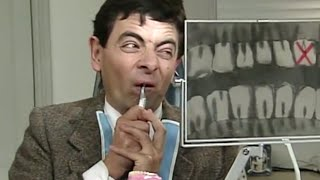 Mr. Bean Operates on Himself | Mr. Bean Official
