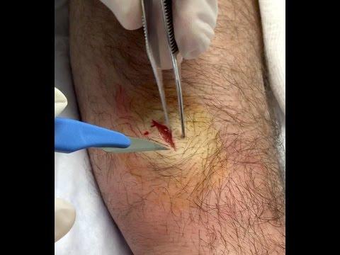 Forearm Ganglion Cyst Excision Redux!  New Koi Vid!