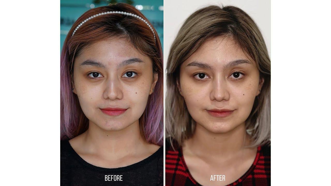 Filler + Botox Experience