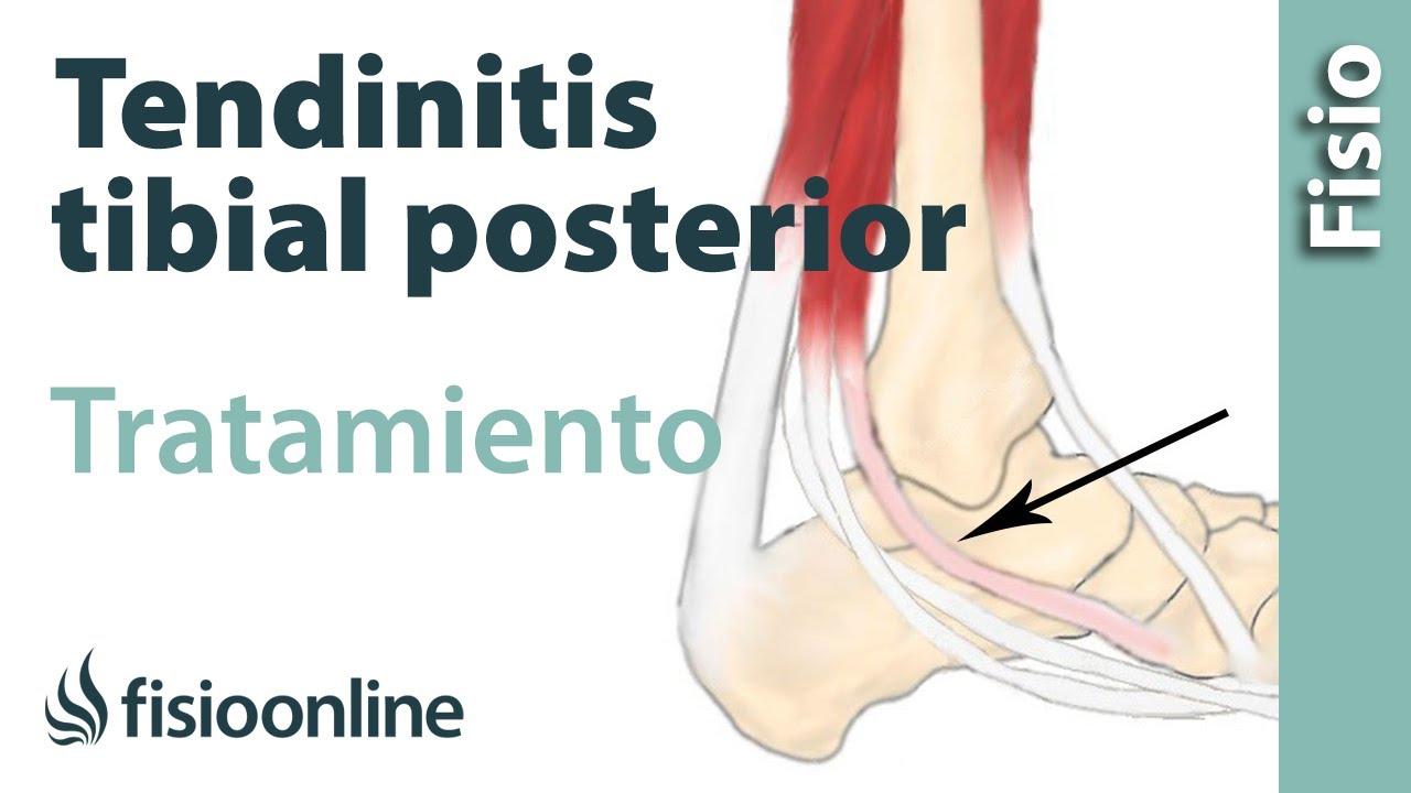 Tendinitis del tibial posterior. Tratamiento con ejercicios de fisioterapia. 36e204f80935