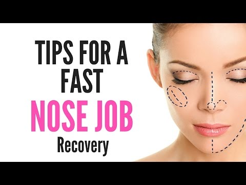 Tips For A Fast NOSE JOB/SURGERY Recovery