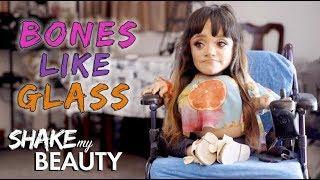 The Make-Up Artist With Bones Like Glass | SHAKE MY BEAUTY