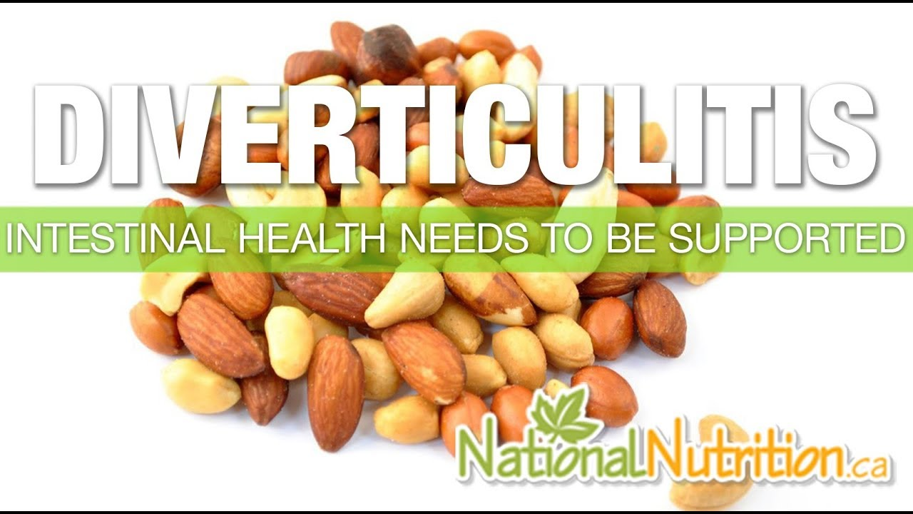 Diverticulitis - National Nutrition Articles