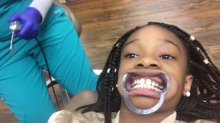 getting my braces
