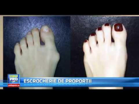 după operația de la varigii de pe picioare)