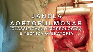 Cirurgia Narrada: Classificação morfológica e técnica operatória da Janela Aortopulmonar