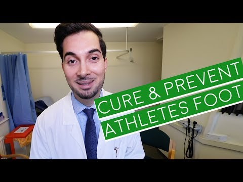Athlete's Foot | How To Cure Athlete's Foot | Athlete's Foot
