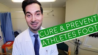 Athlete's Foot | How To Cure Athlete's Foot | Athlete's Foot Cream (2019)
