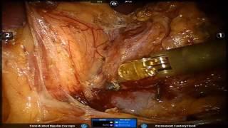 Şişman Hastada Robot Ameliyatı