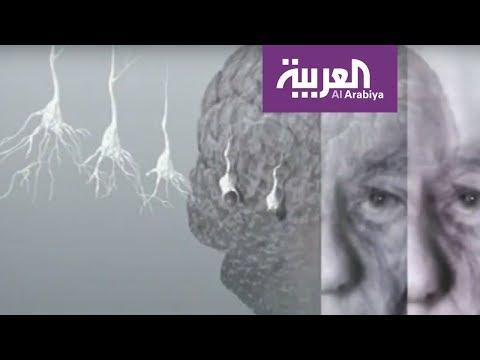 ثقافة العيب تمنع إحصاء مرضى الزهايمر في فلسطين  - 17:54-2018 / 9 / 21