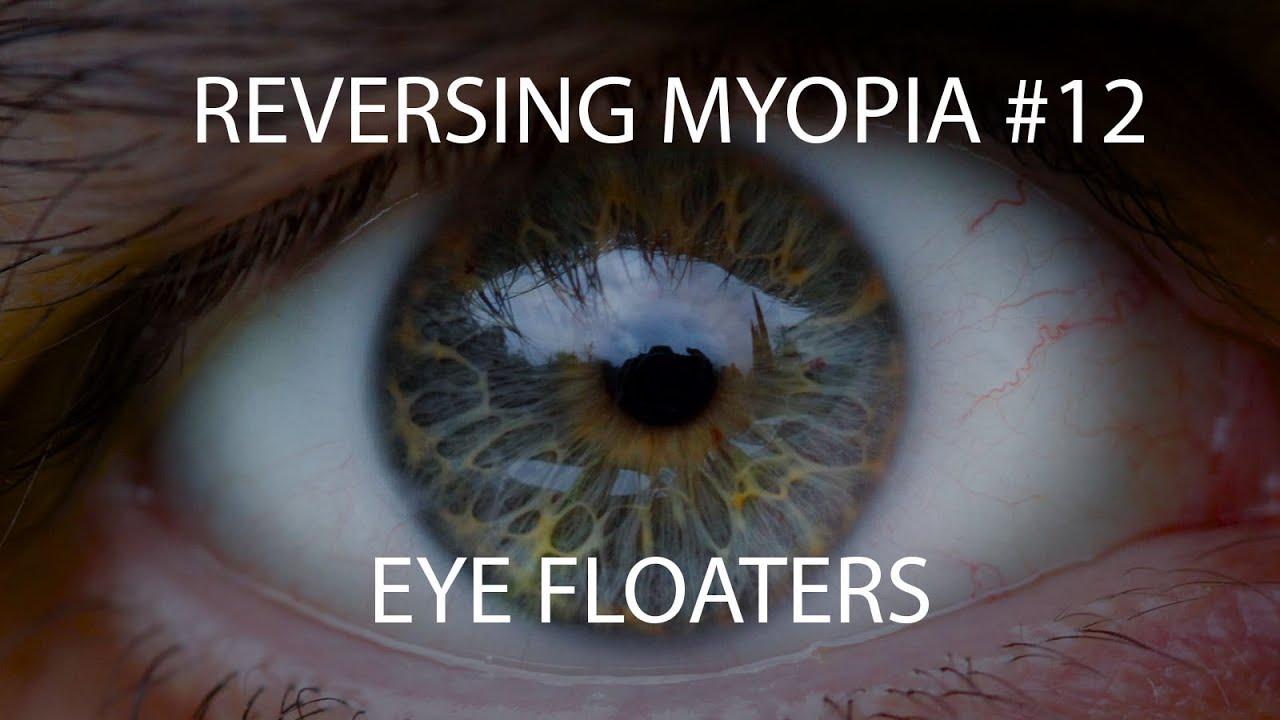 látás-helyreállító mandala látássérült gyermekek integrált oktatása nevelése