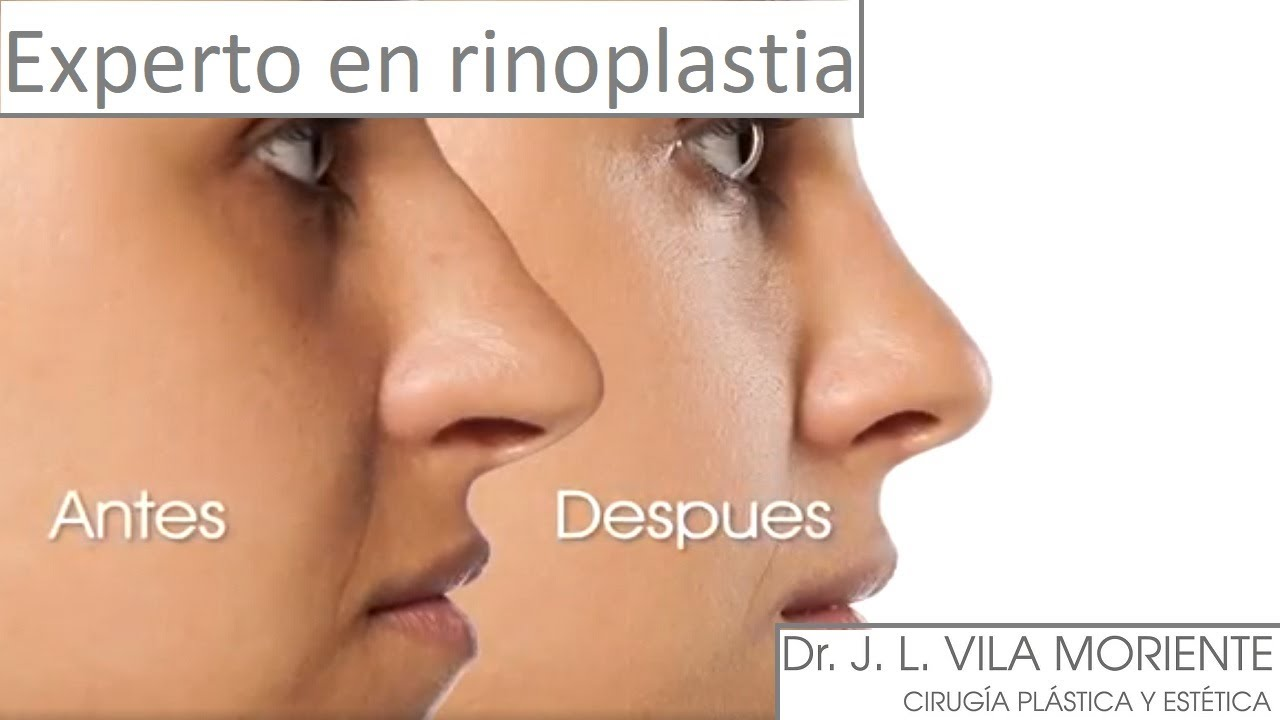 especialista en rinoplastia seattle + para diabetes