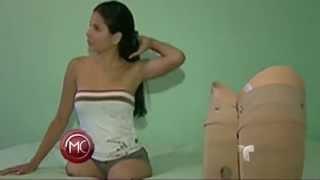 Repeat youtube video Maria A. B . . .DAK amputee   ARV