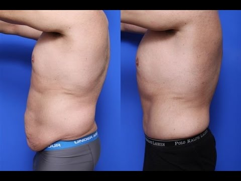 Male Tummy Tuck Scar Pictures Bellevue WA  - Dr. Brian Windle