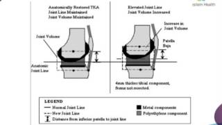 Total Knee Replacement: Planning and Technical Considerations by Dr James Churchill