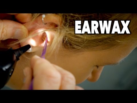 PAINFUL EARWAX REMOVAL (2 Huge Clumps) | Dr. Paul