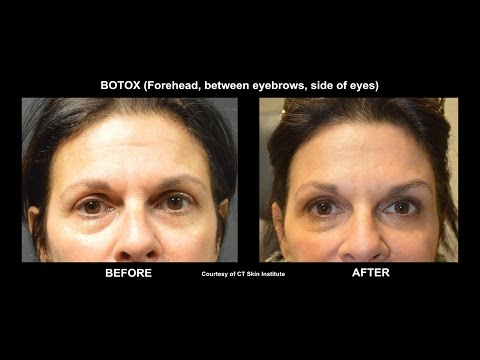WATCH Botox Injection with Before and After. Board Certified Dermatologist in Stamford, CT